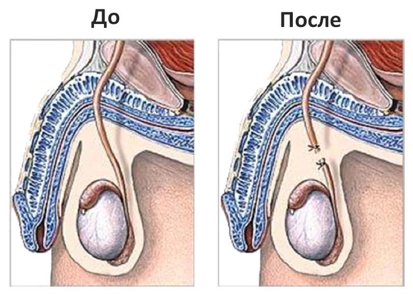 вазэктомия для мужчин